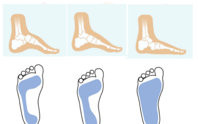 What is your foot type?